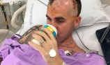 Mingay undergoes successful brain surgery